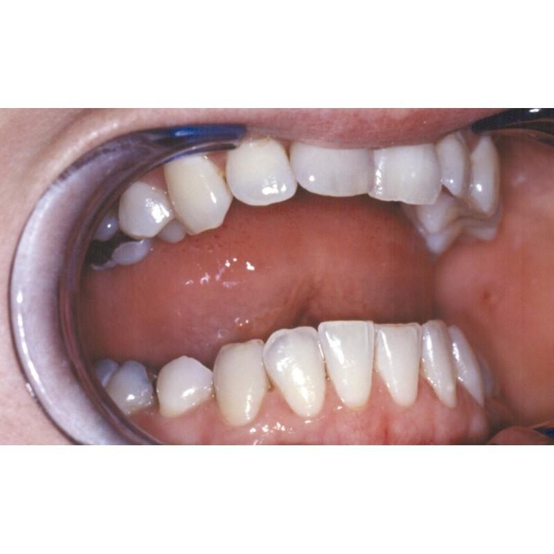 gomme dentaire antitaches pour enlever la coloration sur les dents. Black Bedroom Furniture Sets. Home Design Ideas