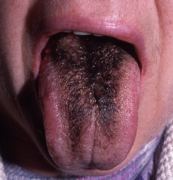 langue noire