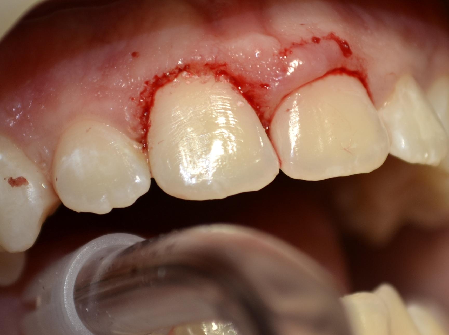 gingivoplastie