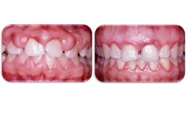 image Brosse a dents electrique sur le clito