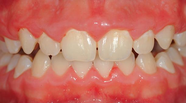 La gingivite traitement et sympt mes laboratoire medident - Symptomes fausse couche sans saignement ...