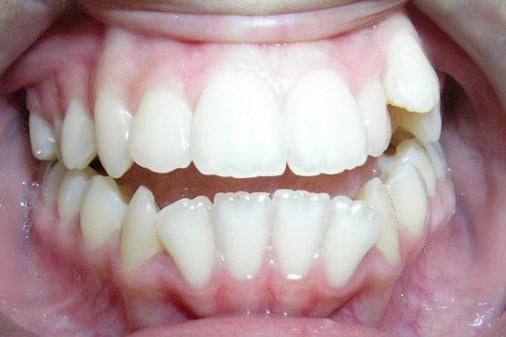 dents arrachées douleur