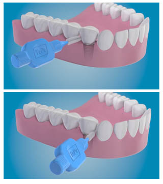 dentifrice pour implant