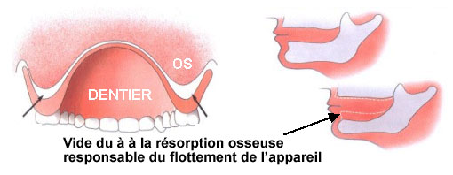 resorption de l os