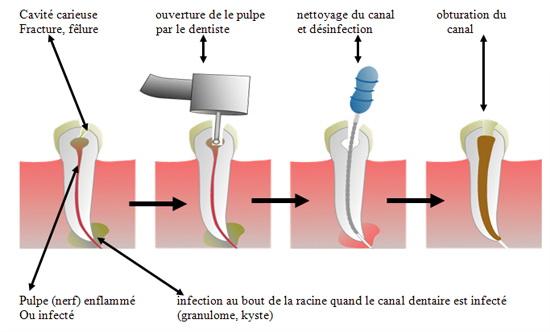 traitement de canal