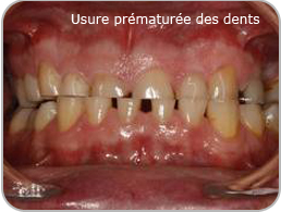 usure des dents