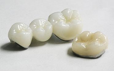 comment tient une couronne dentaire