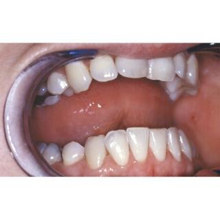 Gomme Dentaire Antitaches Pour Enlever La Coloration Sur Les Dents