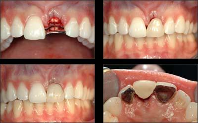 prix d un implant pour une dent