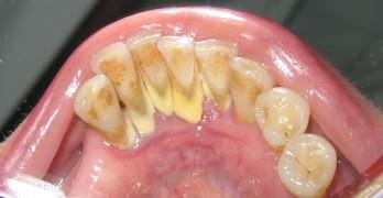 Comment se passe un detartrage dentaire - Comment enlever le tartre ...