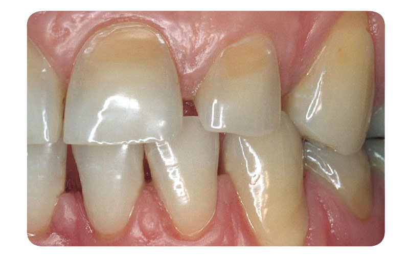 erosion dentaire