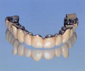 bridge dentaire complet
