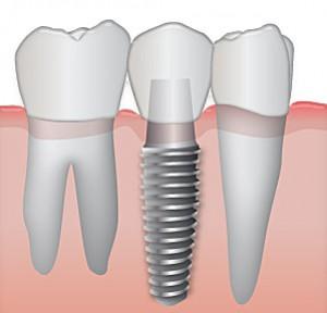 comment entretenir un implant dentaire laboratoire medident. Black Bedroom Furniture Sets. Home Design Ideas